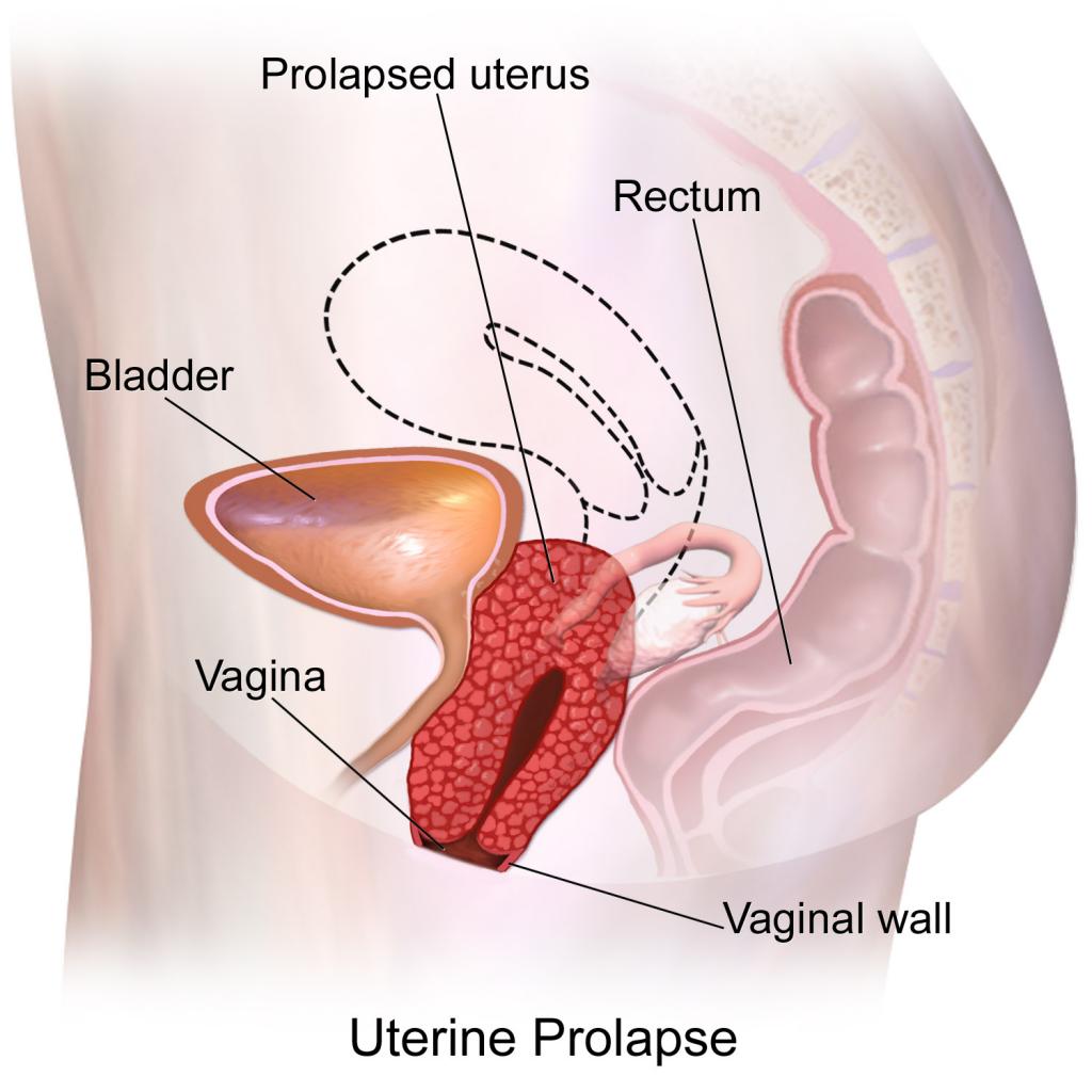 Keglove vaje in Zdrs medeničnih organov